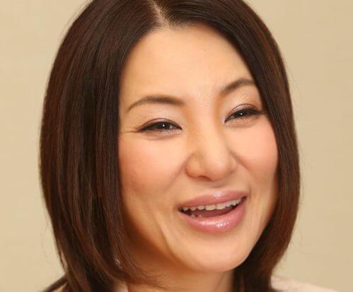 広瀬香美の顔整形は40歳の頃から10年以上