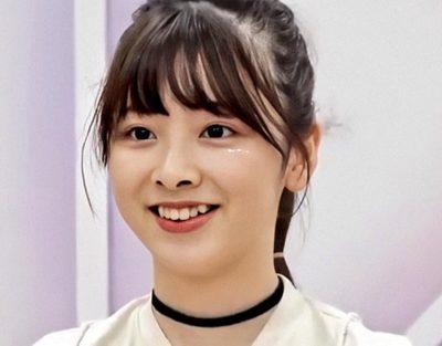 ミイヒ(JYP虹プロ)の痩せすぎの理由④ 歯の矯正